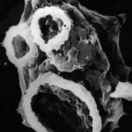 electron microscope scan of microscopic critter